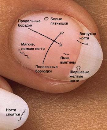ногти, самодиагностика