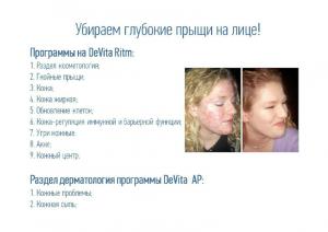 20.01.15_Шевелева_13