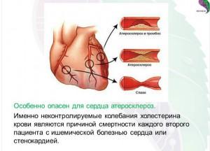 сердце и атеросклероз