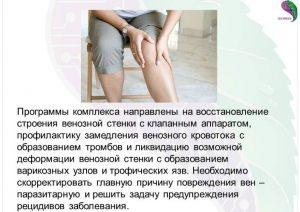 лечение варикоза и тромбофлебита