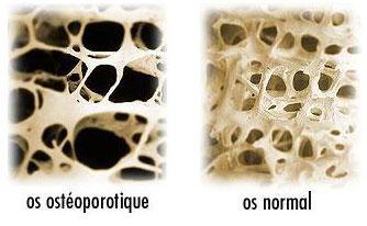 остеопороз при закислении организма