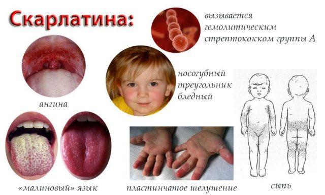 детские инфекции-скарлатина