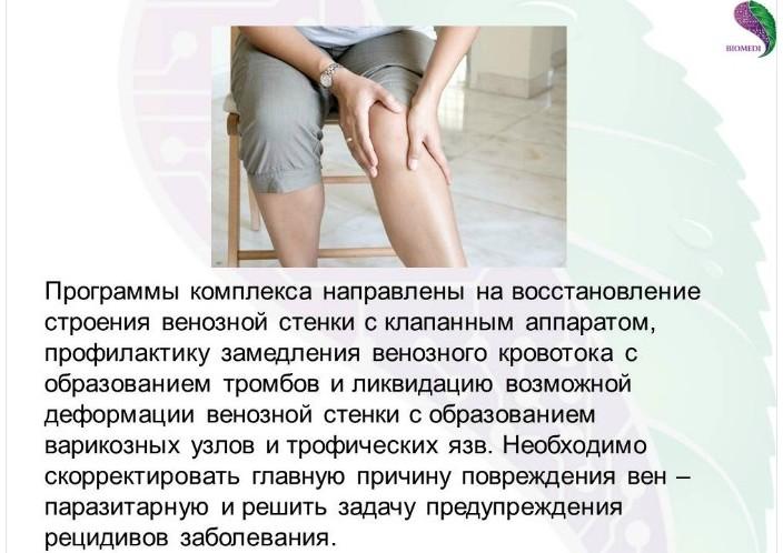 Лечение варикоза отек ног