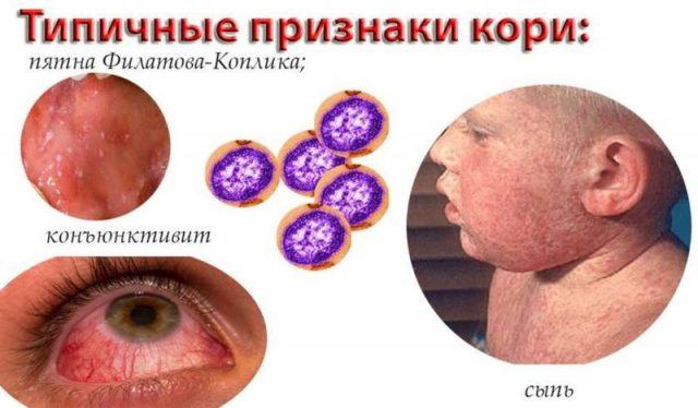 детские инфекции-корь